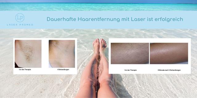 Dauerhafte Haarentfernung mit Laser ist erfolgreich.